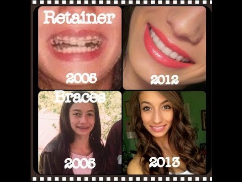 All About Teeth   Braces, Headgear, My Experience, Whitening