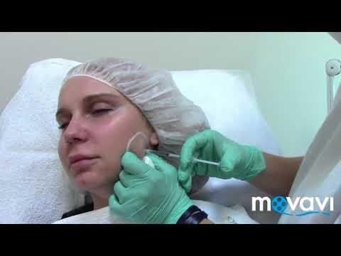 Лифтинг овала лица при помощи коррекции жевательных мышц. Процедура ботокс.