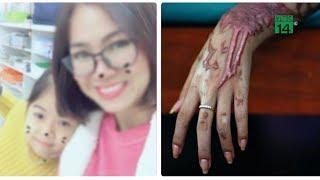 VTC14   Nghi vấn cô giáo ở Hà Nội bị chồng cũ tạt a xít