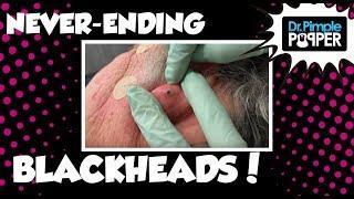 Never Ending Blackhead Surprises!