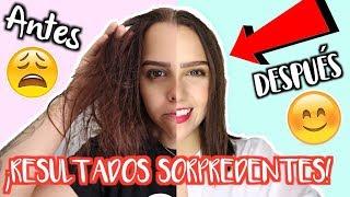 download musica ¡EL EXPERIMENTO QUE CAMBIO MI CABELLO *ASOMBROSO*5 DÍAS*