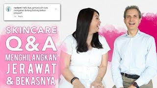 Produk untuk Jerawat dan Bekas Jerawat | Instagram Q&A | Skincare 101