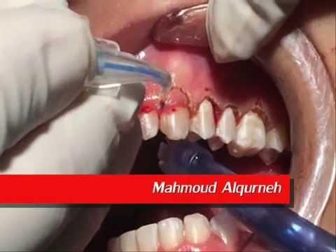 LASER Gingivectomy( gummy smile )  تجميل الابتسامة بإستخدام الليزر