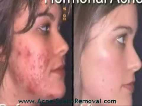 Treatments For Acne Scars Marks - Best acne scar treatment