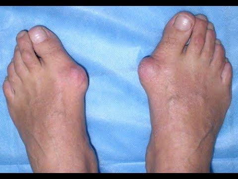 ★5 таблеток аспирина раствори в 10 мл йода и смазывай шишки на ногах. Избавишься от косточки на ноге
