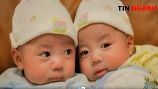 Cặp song sinh mỗi con 1 bố ở Hòa Bình đâu là sự thật