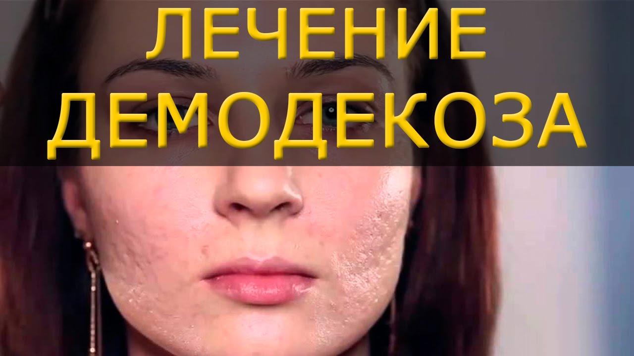 Лечение демодекса на лице в домашних условиях