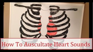 How To Auscultate Heart Sounds!