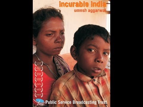 INCURABLE INDIA