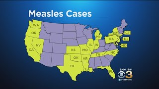 CDC Monitoring Measles Outbreak In Over 20 States, Including New Jersey, Pennsylvania