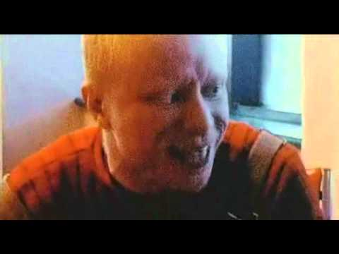 Black Albino Rapper Black Albino Rap