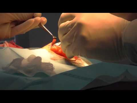 Lipoma Removal Surgery