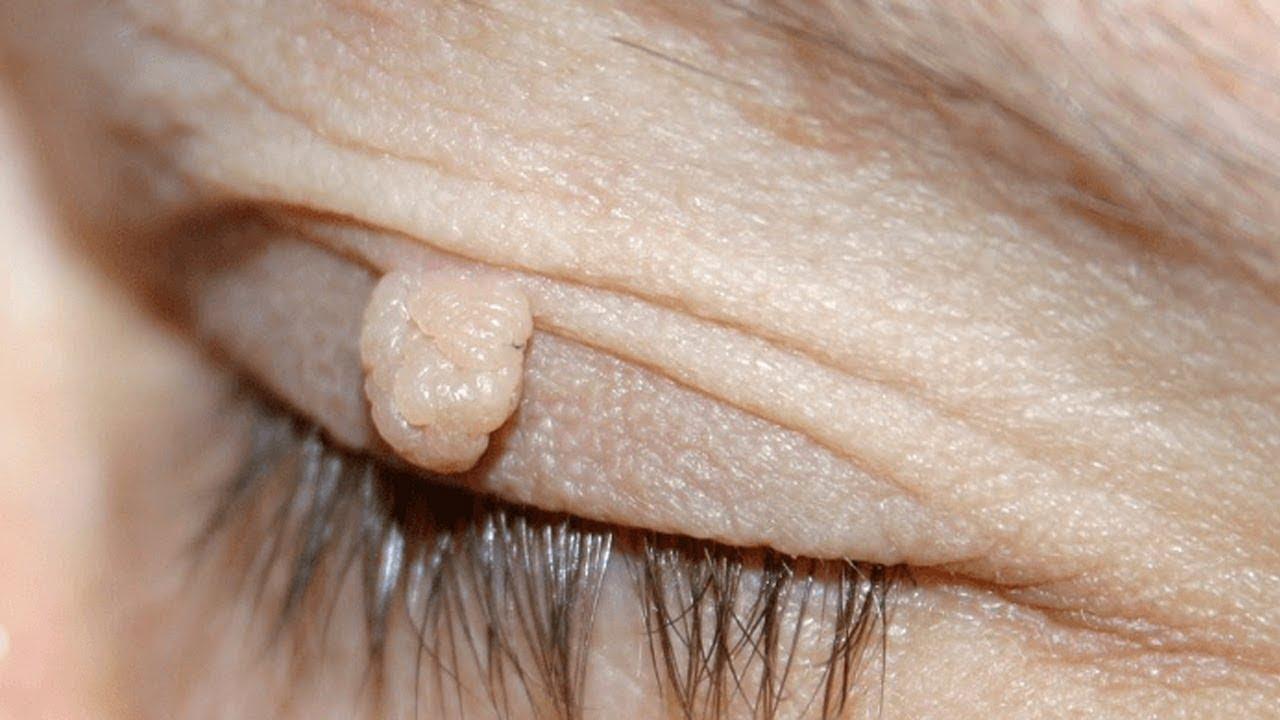 علاج الثآليل بدون ألم ستختفي الزوائد الجلدية استعمليها 5 ايام فقط