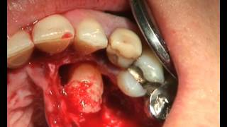 Removal of a retained canine_Satelec_Apostolides Dental
