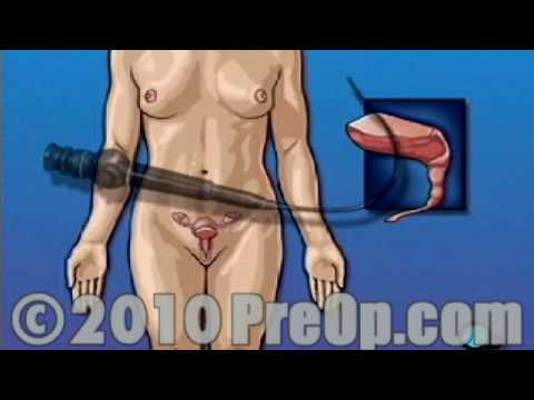 PreOp® Educación del Paciente Cystoscopy Female Vaginal