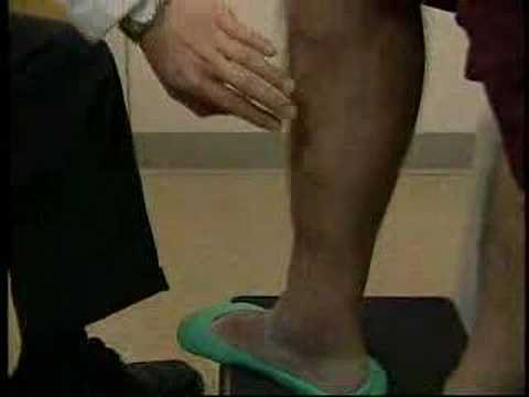EVLT Varicose Vein Laser Treatment