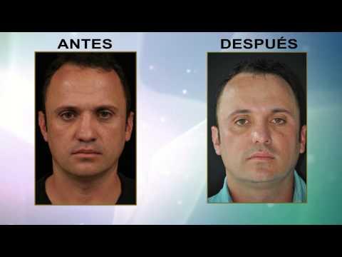 Implantes Paranasal y premaxilar Antes y Después Medellin Colombia