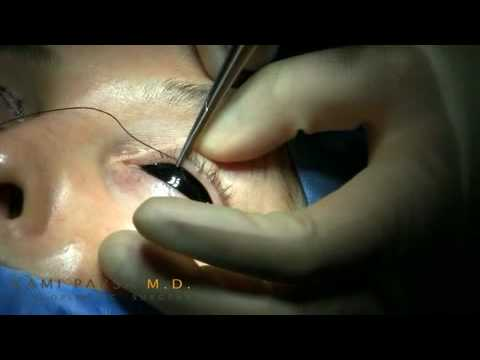 Eyelid Ptosis Correction Surgery in High Speed