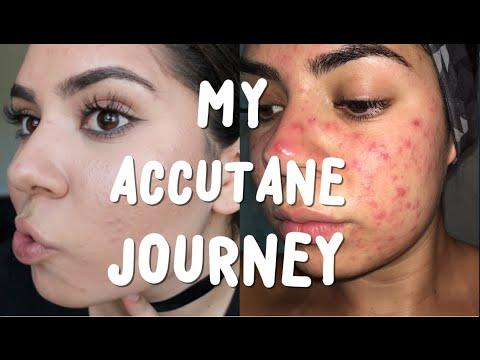 Accutane Week 1 | Starting Accutane & My Acne Journey