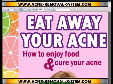 Eat Away Your Acne - E-Book and 3 FREE Bonuses - $27