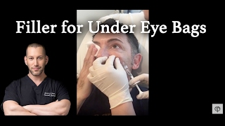 Filler for Under Eye Bags and Dark Circles using Belotero | Under Eye Injections | Beverly Hills