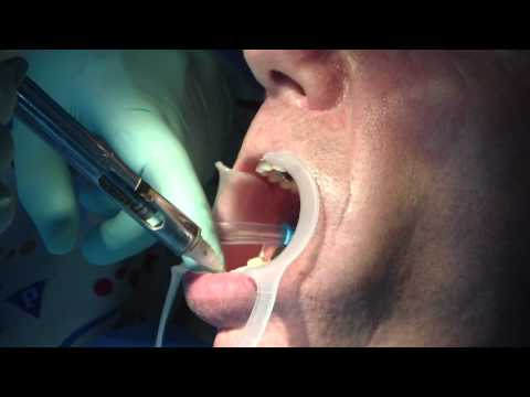 Root canal treatment and tooth damaged repair PART 1
