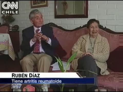 Artritis Reumatoide y terapia biológica. CNN Chile 2009
