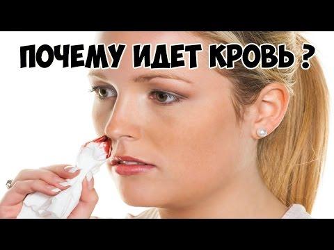 Почему из левой ноздри идет кровь