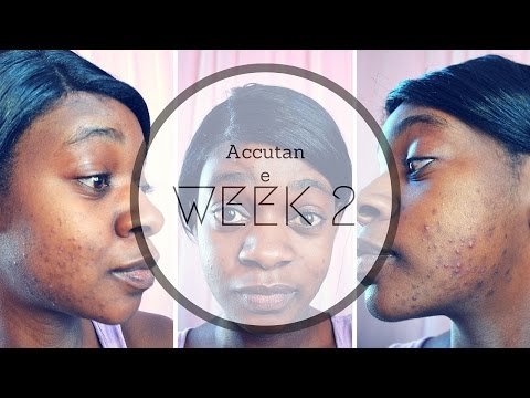 My Accutane Journey|Week 2|Supplements|Dryness
