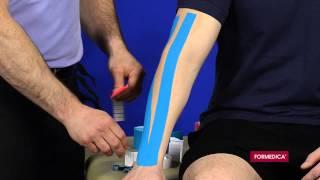 play youtube video chirurgie de la tendinite du coude tennis elbow sous arthroscopie toulouse. Black Bedroom Furniture Sets. Home Design Ideas