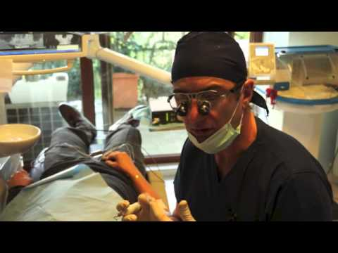Implantologia Carico Immediato - Dr. Giuseppe Bianco