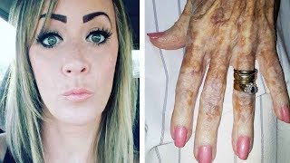 Nurse takes pic of elderly woman's hand detail in the picture makes the net boil