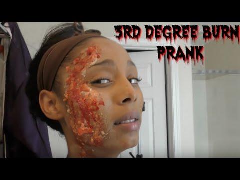 3rd Degree Burned Prank!