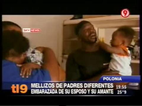 Madre tuvo mellizos de padres diferentes: de su marido y de su amante!!!!