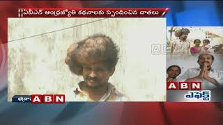 ABN Effect | Cancer Survivor Thanks ABN Andhrajyothy And Donors Who Saved His Life