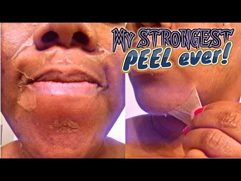 My STRONGEST Chemical Peel EVER!