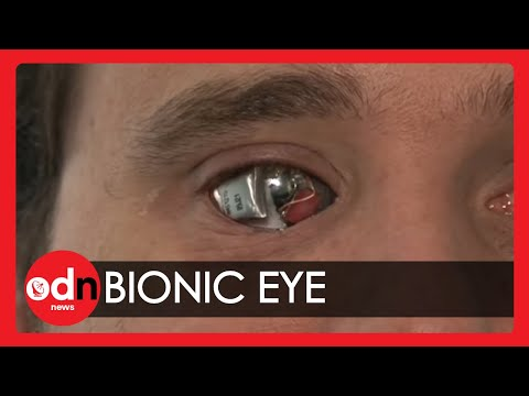 Man sees with 'bionic eye'