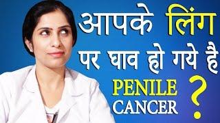 क्या आपके लिंग पर घाव हो गये है ?│Penile Cancer│Life Care│Health Education Video In Hindi