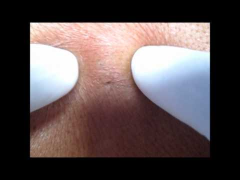 Sebaceous Cyst & Its Method Of Excision