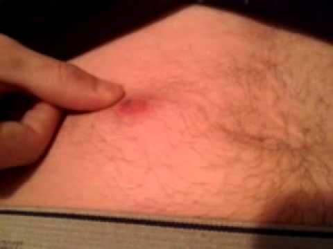Ingrown Hair Infection On My Stomach Youtube
