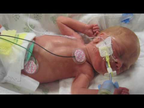 Premature babies at 26 weeks
