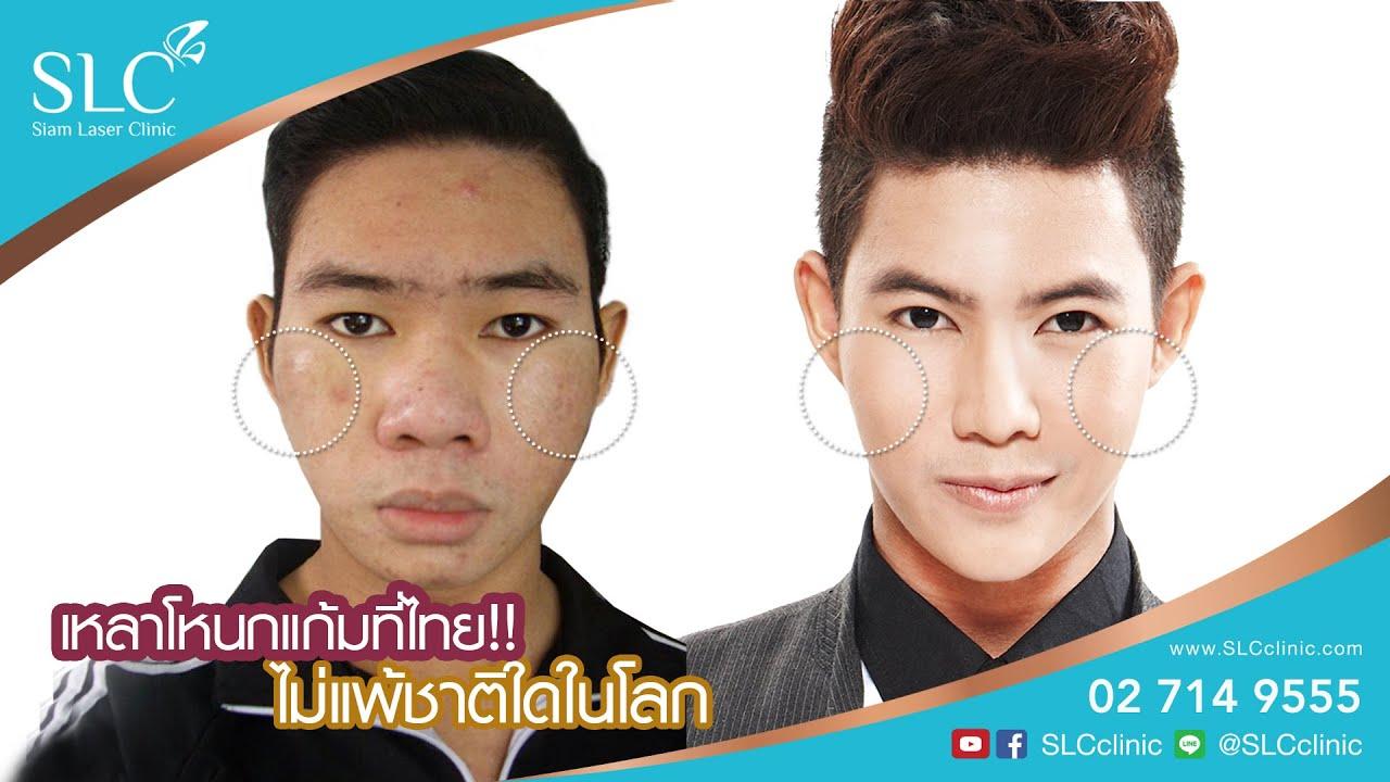 เหลาโหนกแก้มที่ไทย ไม่แพ้ชาติใดในโลก ลดโหนกแก้มที่ SLC