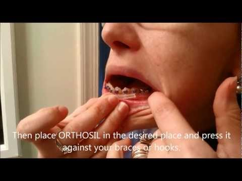 Braces Protection Protection Orthosil Brace