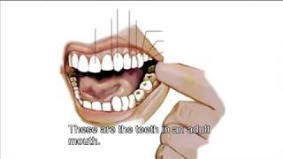British English Vocabulary about Teeth and Dentists - Learn English
