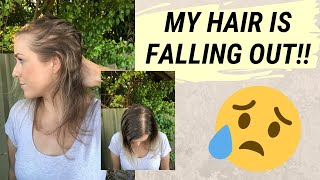 MY HAIR LOSS JOURNEY | How I went from thin to thick hair