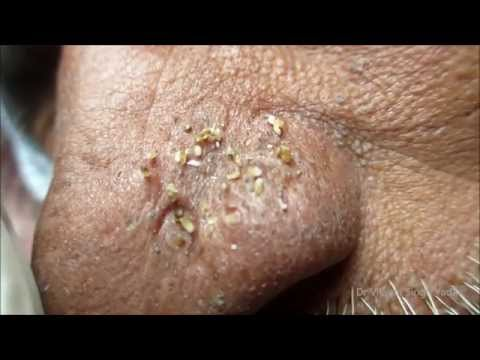 Black Heads On Nose - Diagram & Removal (Re Upload)