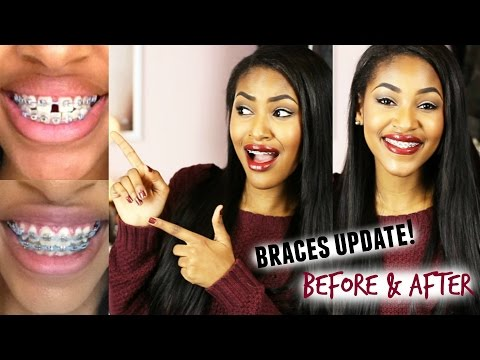 Braces Update! Before & After