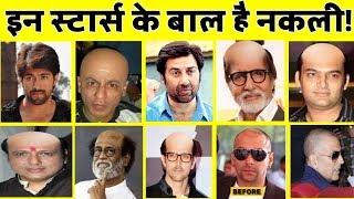 यह बॉलीवुड सितारे हों चुके हैं गंजे, लगाते हैं नकली बाल! | Bollywood Actors fake Hair!