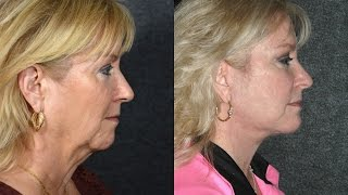 how to get rid of jowls and turkey neck