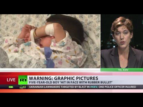 5yo Palestinian boy shot in face by Israeli police